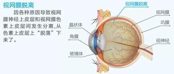 高度近视会导致哪些眼病,该如何矫正