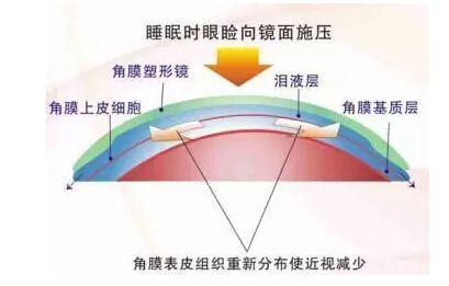 角膜塑形镜的利与弊你了解吗?