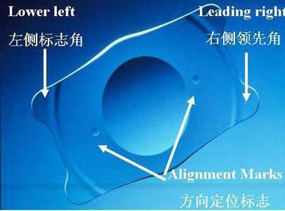 矫正高度近视的理想选择——ICL晶体植入术