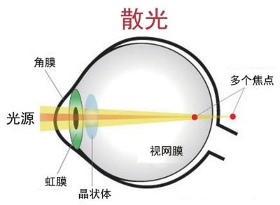 散光会导致弱视吗?