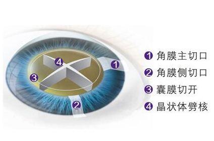 岳阳华厦超声乳化治疗白内障有哪些优势?